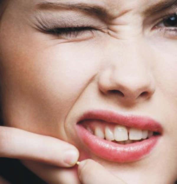 esbueno-acne