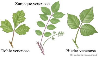 hiedra-venenosa